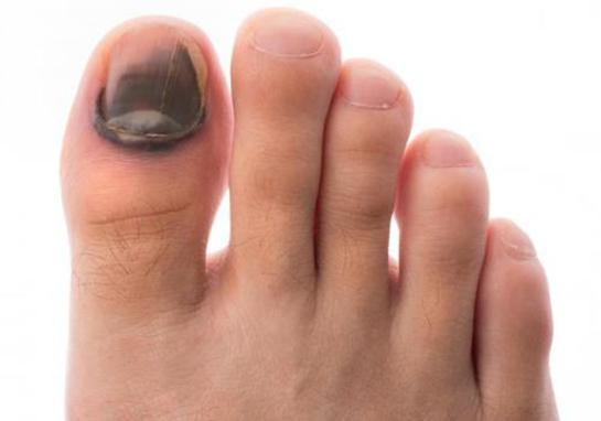 Походила в тесной обуви теперь на больших пальцах ног ногти как отбиты